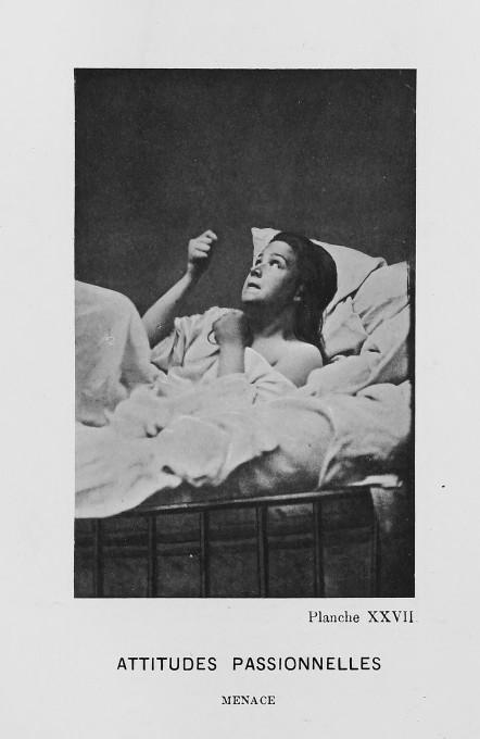 Paul Regnard, Augustine Gleizes. From: Bourneville et P. Regnard, Service de M. Charcot, 1878. Iconographie Photographique de la Salpetriere.