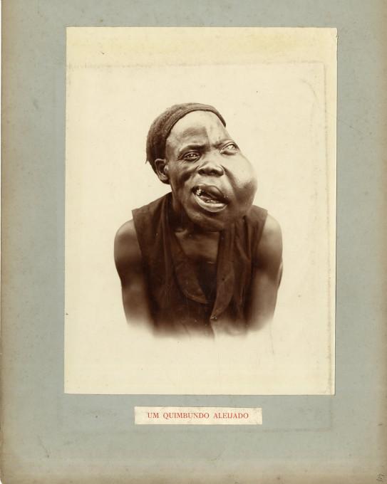 Slika 1. Cunha Moraes, Angola, Benguela. Um Quimbundo Aleijado, Circa 1888, modrotisk.